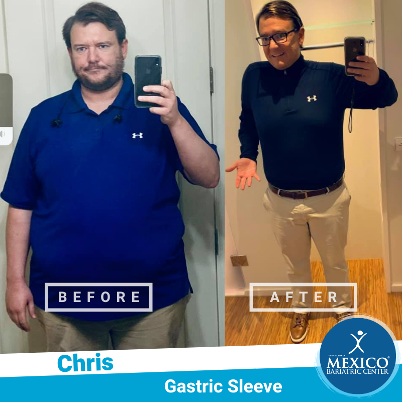 Before and After - Chris S - Gastric Sleeve - 2020 - Mexico Bariatric Center