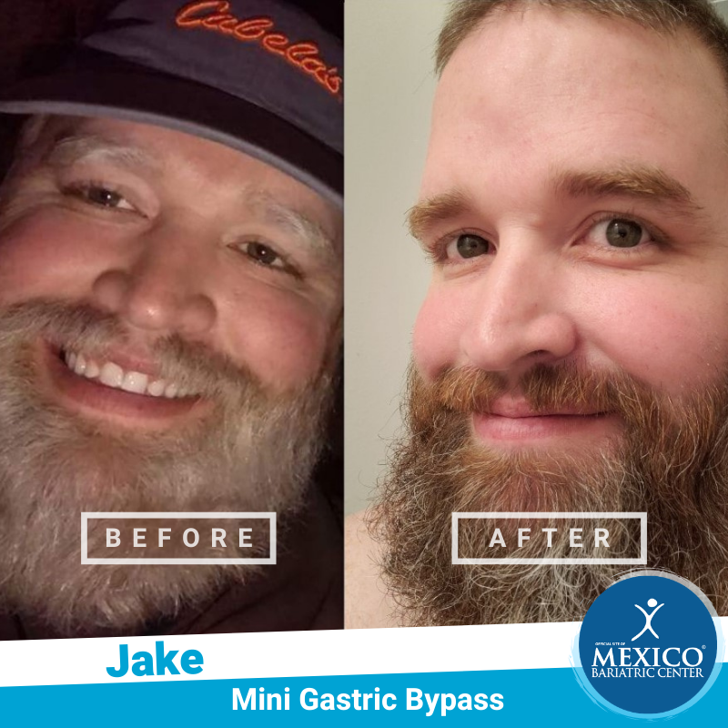 Before and After Jake - Mini Gastric Bypass - Mexico Bariatric Center - Dr Rodriguez