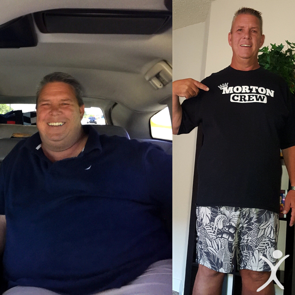 Before and After of 600 lb. Life